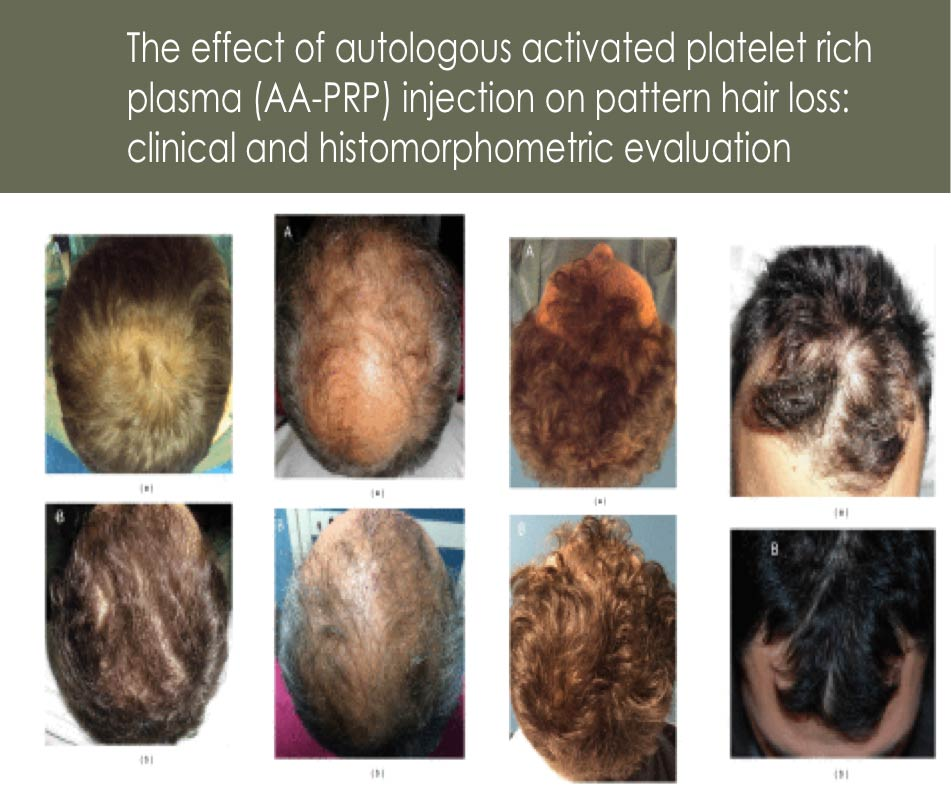 PRP hair loss before and after